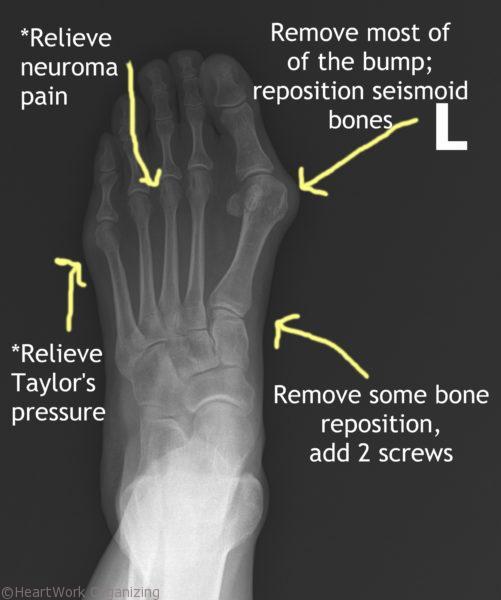 Lapidus Bunionectomy Akin Osteotomy Cpt
