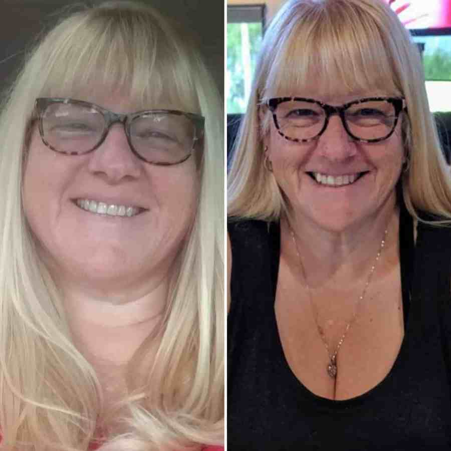 Lori G. Reversed Diabetes Before and After