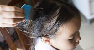 using oil and a nit comb to get rid of lice