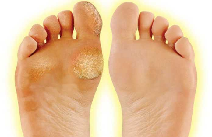 What are calluses and corns, and how do get rid of them? #HeatherEarles #herbnwisdom #naturalliving #homeremedies #footcare #handcare
