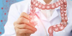 Causas del Cáncer de colon