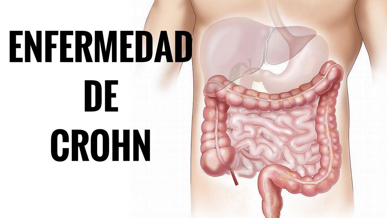 enfermedad de crohn dieta