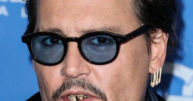 Johnny Depp's teeth 12