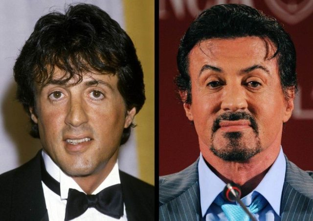 Sylvester Stallone Plastic Surgery 1