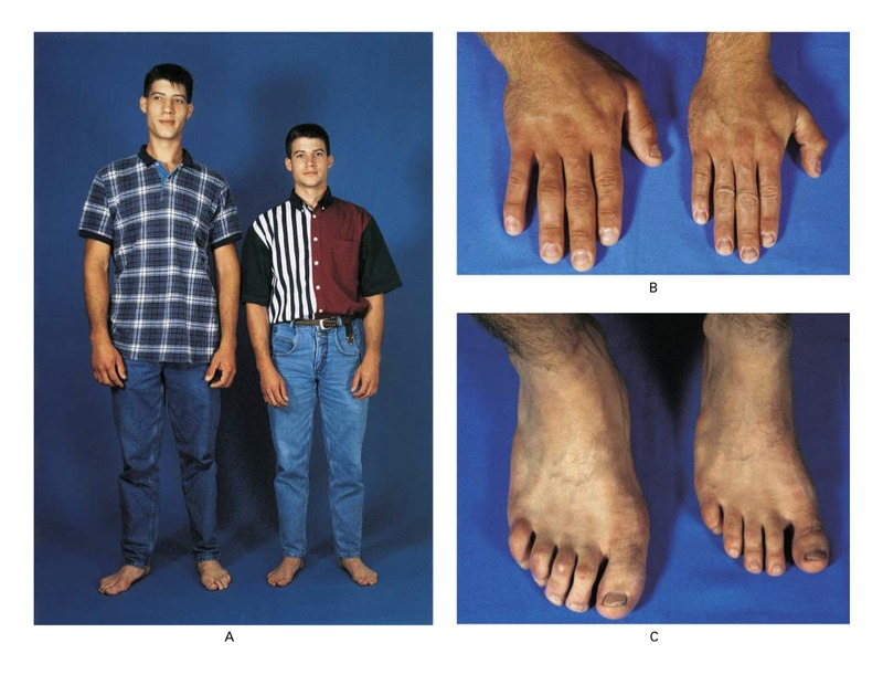 gigantism affecting identical twin