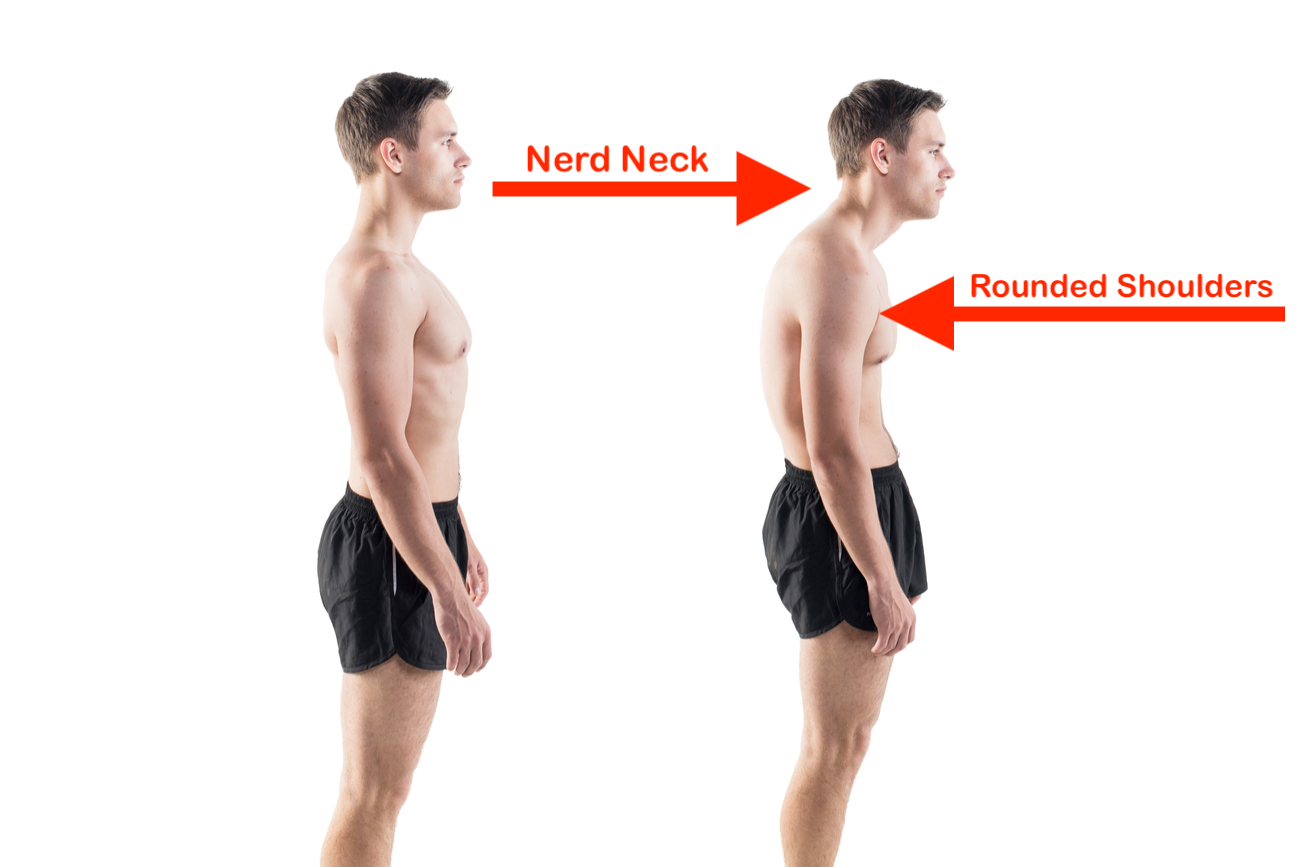 nerd neck rounded shoulders