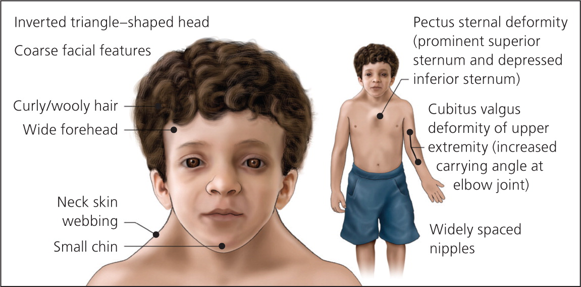 noonan syndrome child