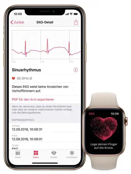 Die Health-App auf dem iPhone speichert die Daten und exportiert auf Wunsch ein PDF für den Arzt.