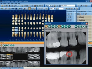 Teeth screenshot