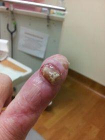 finger-before