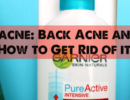 Bacne: Back Acne and How To Get Rid Of It