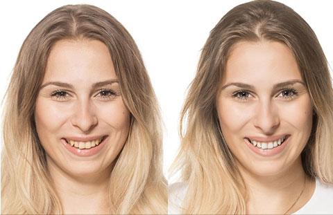 Жидкие виниры Hello Smile - отбеливание зубов при помощи тюбика