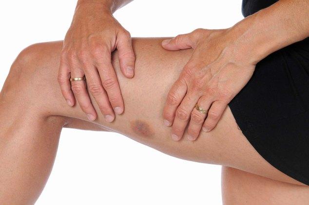 тромбоцитопения при беременности