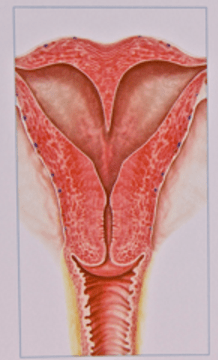 Hjerteformet livmoder