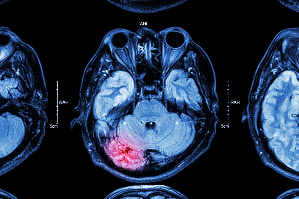 Brain medical image