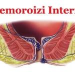 Cum se clasifica hemoroizii interni?