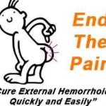 Tratament pentru hemoroizi externi