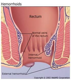 hemoroizi trombozati