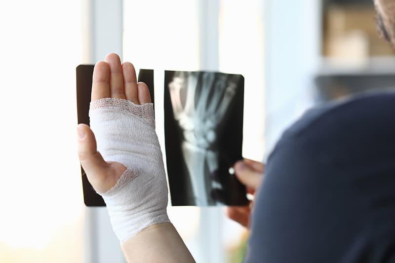 Fractures et l'huile de CBD : pour réduire la douleur et renforcer les os