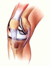 Total diz protezi yerleştirildikten sonra dizin şematik görünümü