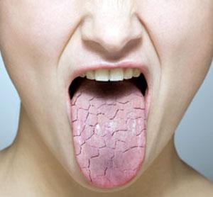 My Teeth?  The Least Of My Hepatitis C Problems... (3/3)