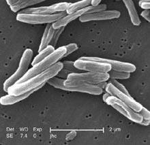 Mycobacterium tuberculosis- scanning electron micrograph.