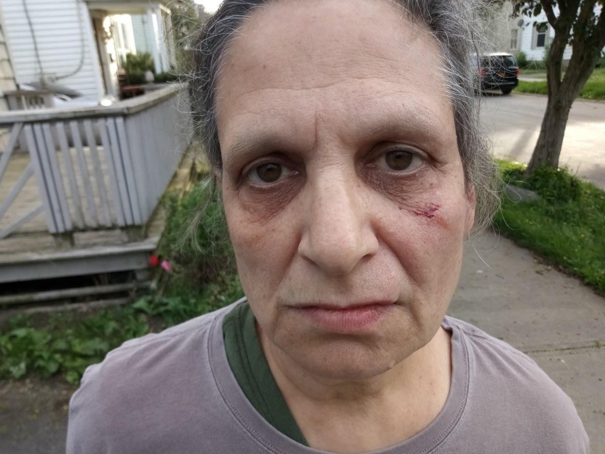 Blogger Beaten by Herkimer Teen Gang Kick Boxer