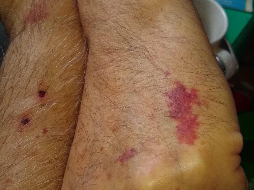 Herkimer poison gas attack injuries
