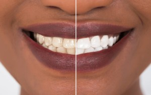 Before and after for teeth whitening