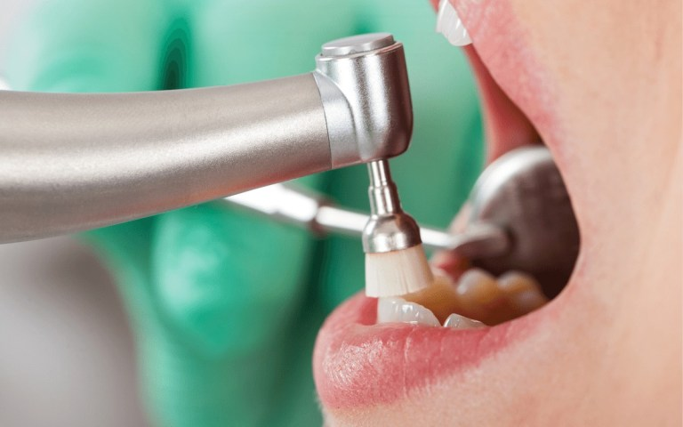 Dental cleaning with professional equipment