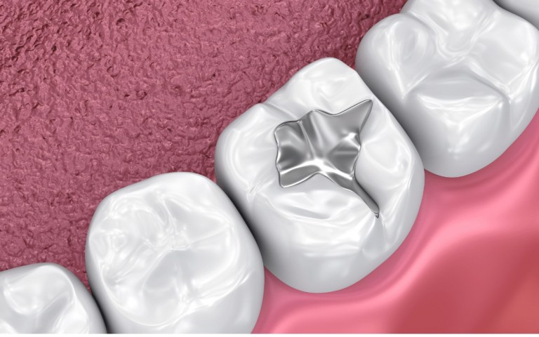 Visualization of dental sealant in place