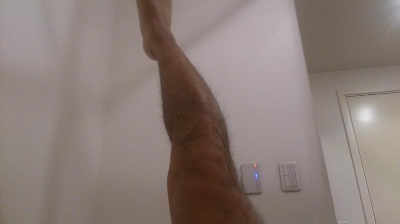 術後3ヶ月で体幹の筋力低下が大きい