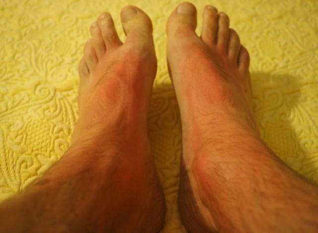 Protection UV homme, la crème solaire jusqu'au bout des doigts de pieds