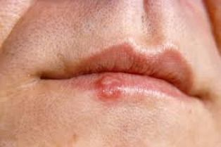 cold sores are common
