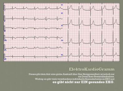 So sieht ein EKG aus.