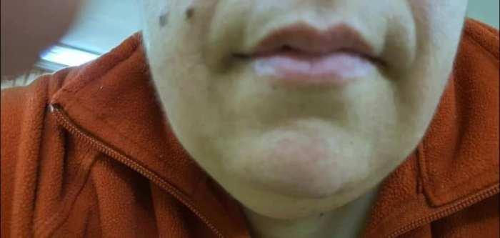 vitiligo yüzde