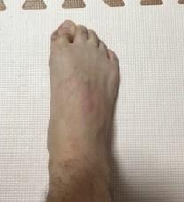足の指屈曲