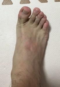 足の指伸展