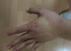 ツルゴールの皮膚色の変化