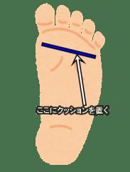 足底板挿入位置