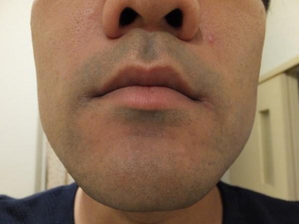 ヒゲ脱毛1回目10日後鼻下:ゴリラクリニック