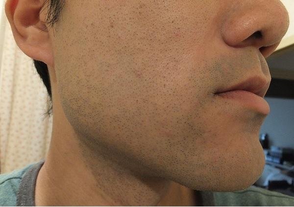 ゴリラクリニックでヒゲ脱毛を受けて4日後の肌状態、赤み写真2