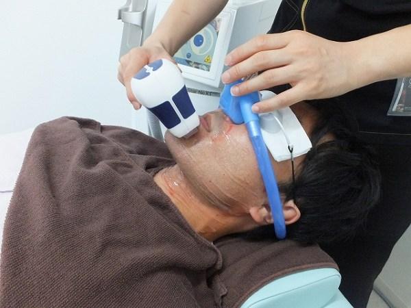 笑気ガス(麻酔)をつけてヒゲ脱毛:痛みも軽減!写真