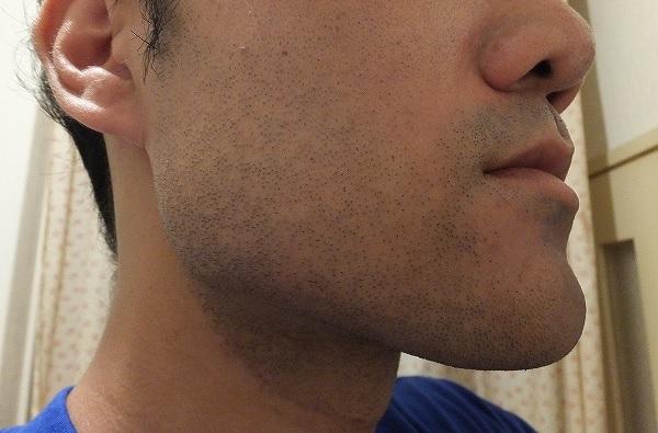 ゴリラクリニックでヒゲ脱毛を受けたその日の夜の肌状態、赤み写真2