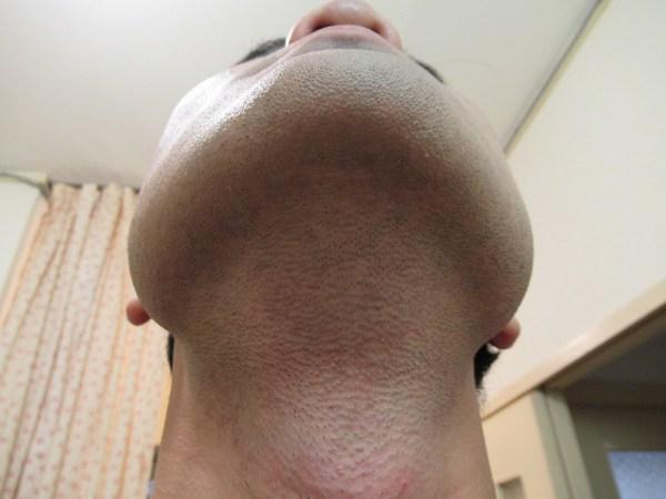 ブラウンシェーバー7でヒゲを剃った後の首回り&アゴした