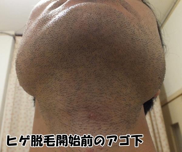 ヒゲ脱毛0回目体験前のアゴ下写真