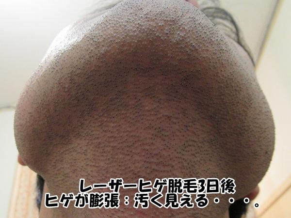 レーザーヒゲ脱毛3日後:ヒゲが膨張し汚く見える