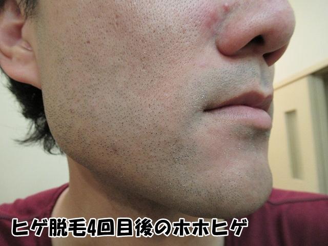 ゴリラクリニックひげ脱毛4回目終了2週間後のヒゲ状態:ほほ