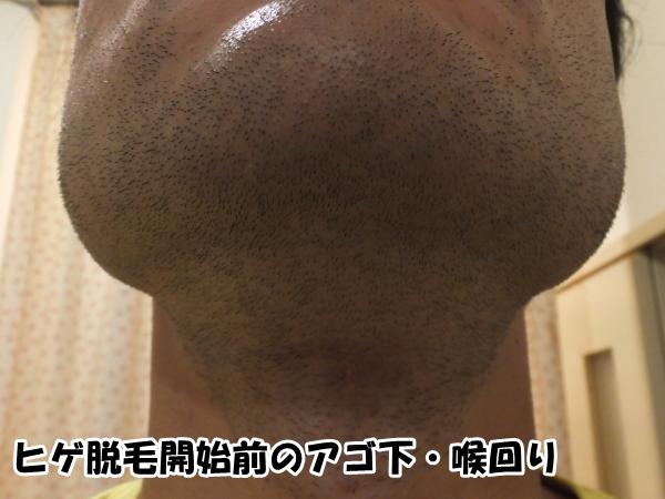 ヒゲ脱毛開始前のアゴ下・喉回りのヒゲ写真