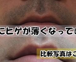 ヒゲ脱毛0回目と4回目の比較写真:鼻下!